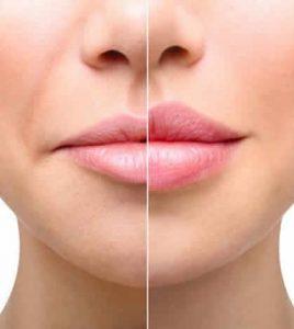 dudak büyütme öncesi ve sonrası