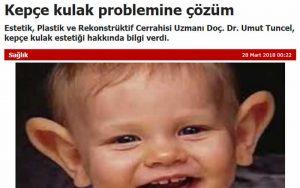 Kepçe Kulak Problemine Çözüm Yörem Gazetesi