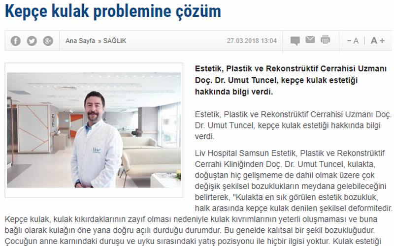 Kepçe Kulak Problemine Çözüm İstanbul Haber Ajansı